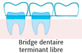 Bridge dentaire terminant libre