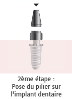 Pilier sur implant dentaire