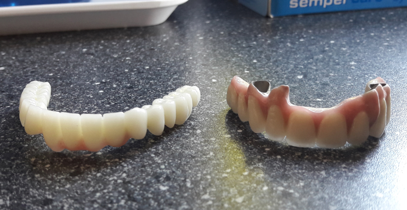 Difference bridge dentaire ceramo-metal et zircone