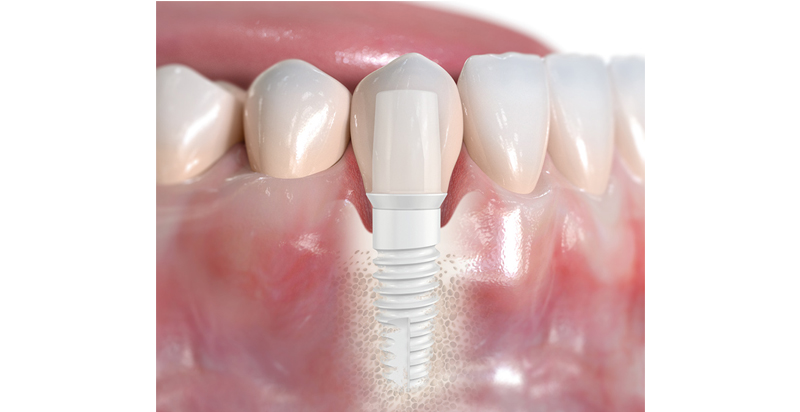 Pose implant dentaire zircone